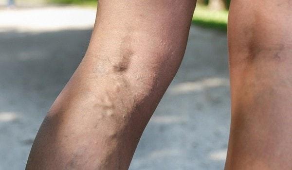 co na żylaki nóg