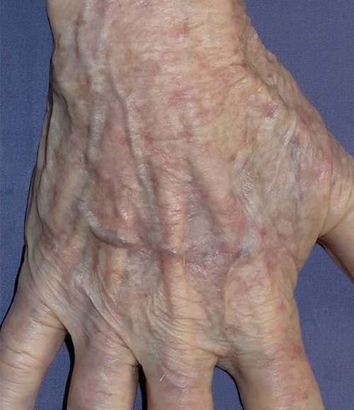żylaki rąk objawy