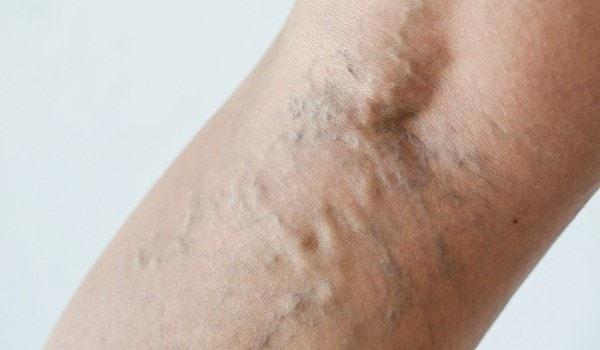początkowe objawy żylaków na ciele
