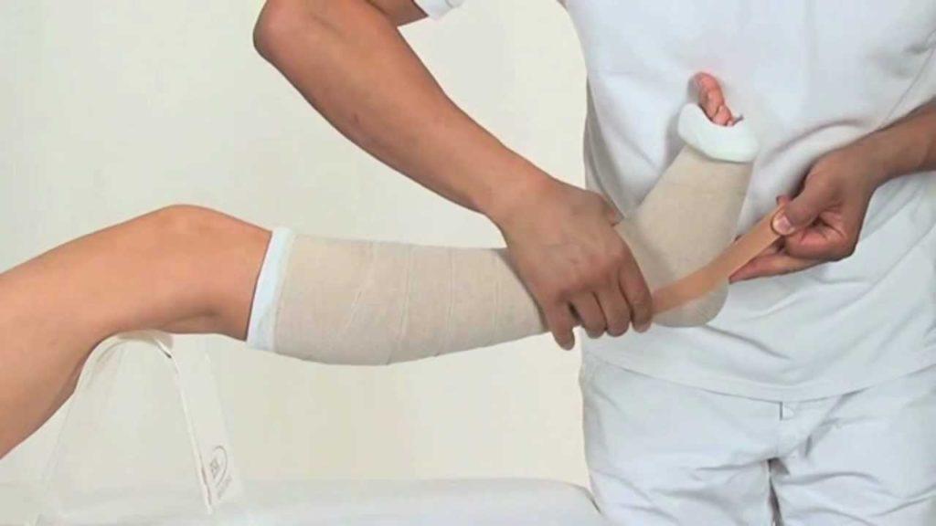 bandażowanie żylaków