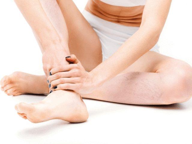 żylaki nóg - leczenie domowe i sposoby naturalne