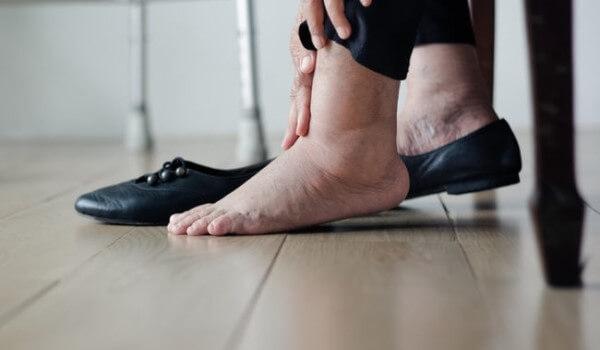 Obrzęki nóg i opuchlizna kostek