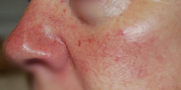 zdjęcie pacjentki z teleangiektazją na twarzy