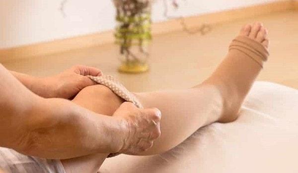Domowe sposoby na żylaki nóg - jak usunąć je naturalnymi sposobami